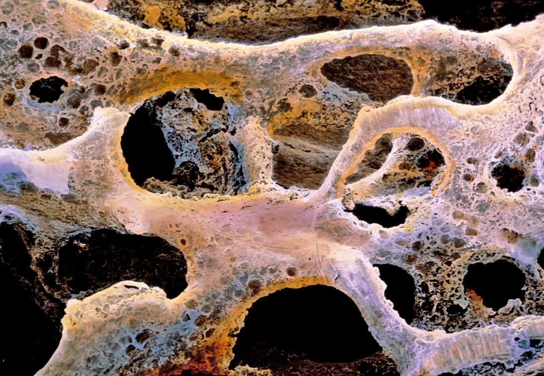 Osteoporosi: malaltia o factor de risc?
