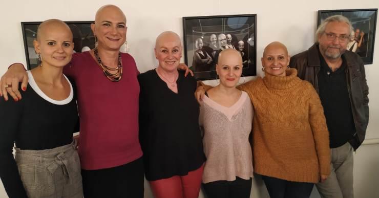 Dones calbes reivindiquen l'alopècia femenina amb una exposició a la Casa de la Cultura
