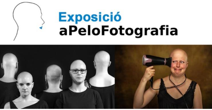 Arriba a la Casa de la Cultura una exposició que trenca el tabú de l'alopècia femenina